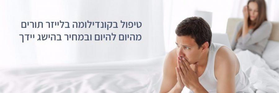טיפול בקונדילומה – כל המידע לפני התחלת טיפול