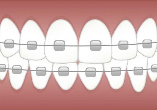 הטכנולוגיה בשירות האורתודונטיה: 5 שיטות מתקדמות ליישור שיניים