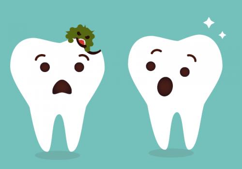 חור בשן – כיצד להימנע ולשמור על השיניים בריאות?
